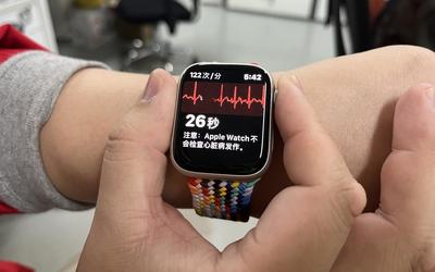 你的國行Apple Watch可以開通ECG了嗎?我開了 你試試